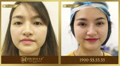 Kết quả sau khi cắt mí mắt chảy xệ tại Dr.Hải Lê
