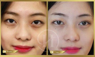 Đôi mắt đẹp tự nhiên của bạn gái sau khi Nhấn Mi Thái Lan Deep Eyes