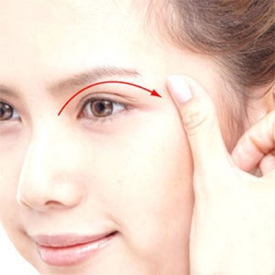 Vì sao phụ nữ sau sinh bị sụp mí mắt