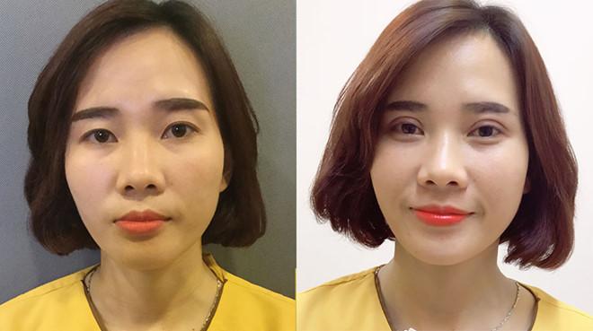 Kết quả chữa mắt to mắt nhỏ tại Dr.Hải Lê.