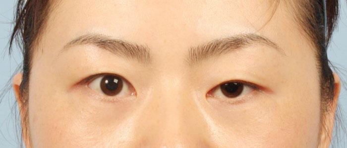 2 mắt lệch nhau chủ yếu do bẩm sinh hay do lão hóa