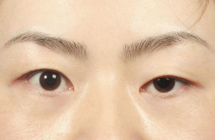 Biểu hiện người mắt to mắt nhỏ