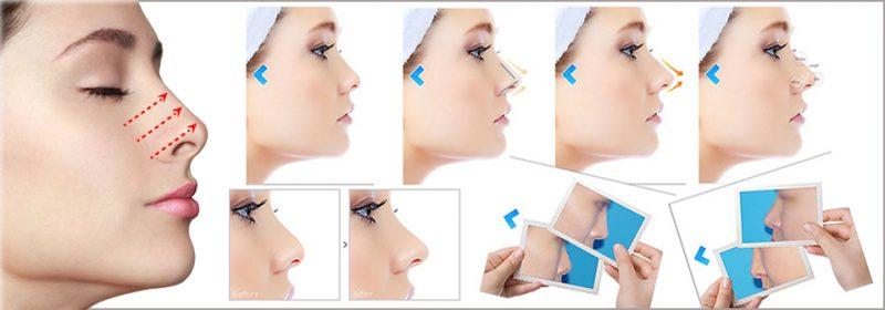 Quy trình thu nhỏ đầu mũi 2