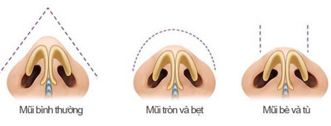 Quy trình thu nhỏ đầu mũi 1