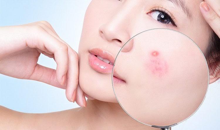 Mụn là một trong những nguyên nhân gây nên tình trạng sẹo rỗ
